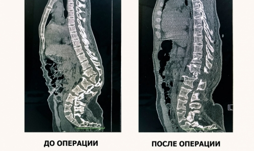 Фото №1 - Краснодарские нейрохирурги спасли молодого парня от паралича ног, удалив ему горб