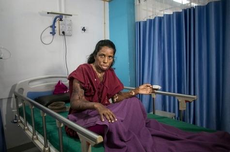 Фото №1 - Жительница Индии до сих пор живет с мужем, который облил ее и их маленьких дочерей кислотой