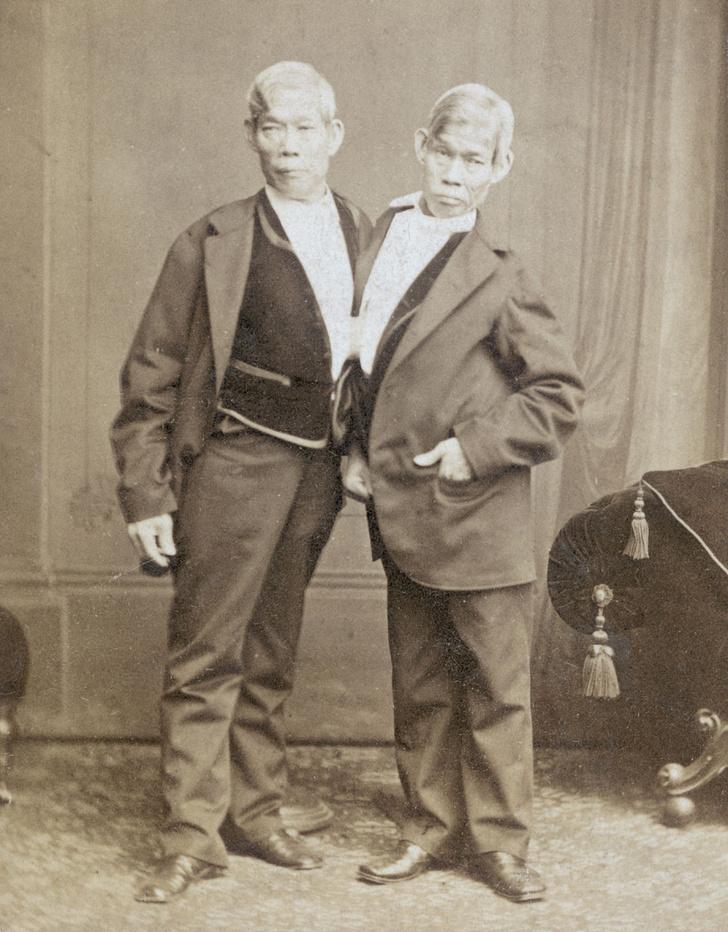 London Stereoscopic Company / Stringer / Getty ImagesСиамские близнецы Чанг и Энг Банкеры (1811 - 1874), фото около 1870 года