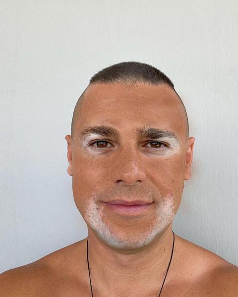 Фото №2 - Муж Пынзарь озадачил поклонников странными пятнами на лице