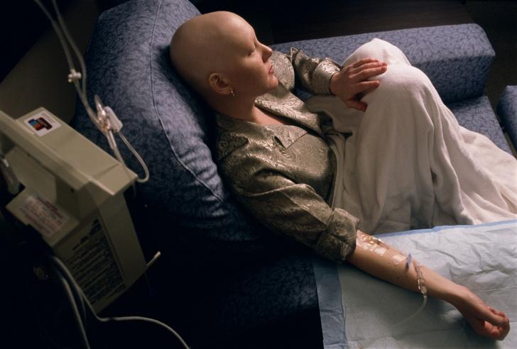 Фото №3 - Эффект феникса: как быстрее всего восстановить волосы после химиотерапии