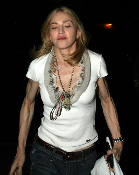 Фото №12 - Как тело Мадонны наказало ее за десятилетия суровых нагрузок и диет