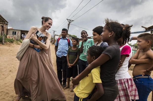Фото №2 - Костяная рука: Анджелина Джоли снова напугала изможденными конечностями со вздутыми венами