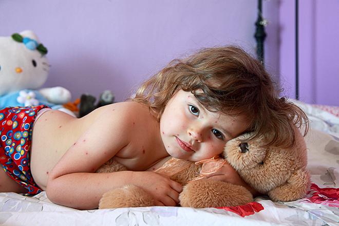 Фото №1 - Ветрянка: что нужно знать о «детской болезни»