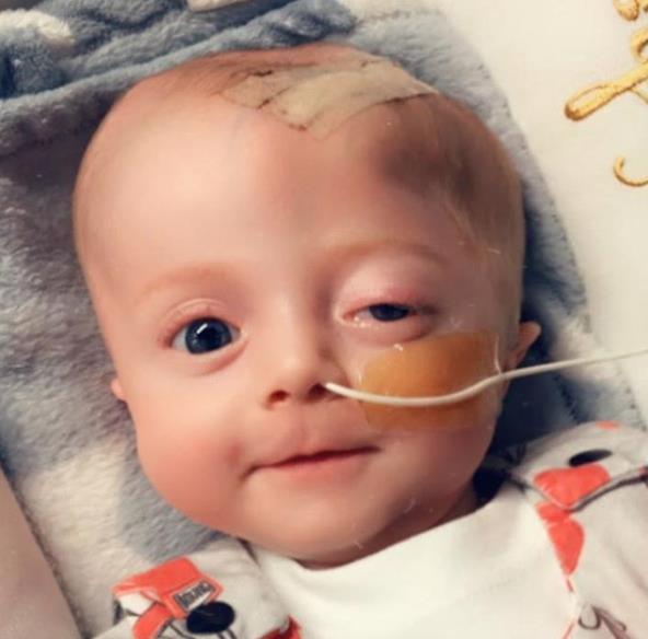 Фото №3 - Новорожденному сделали 11 операций на мозге за 10 месяцев