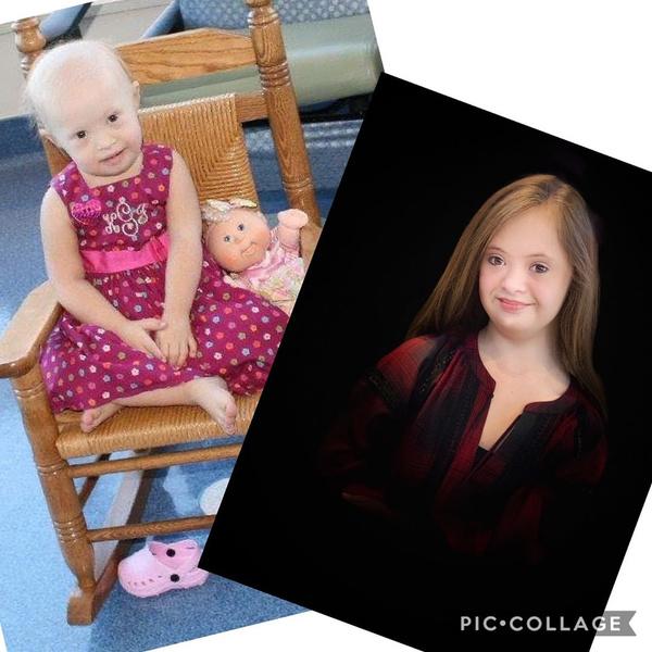 Фото №4 - Девочка с лейкемией и синдромом Дауна стала моделью: фото