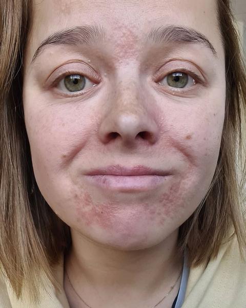 Фото №1 - Сторис немного не фэшн: Наталья Медведева показала лицо с дерматитом