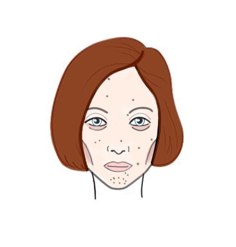 Фото №3 - Как еда и напитки отражаются на нашей коже: результат на лицо