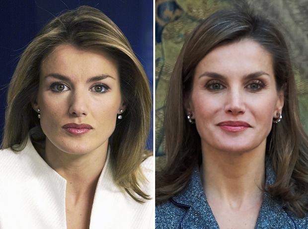 Фото №3 - Королевы и пластика: как меняли внешность коронованные особы
