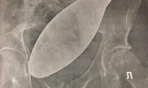 Фото №1 - Петербургскому врачу сделали замечание за забытый в животе пациента хирургический инструмент
