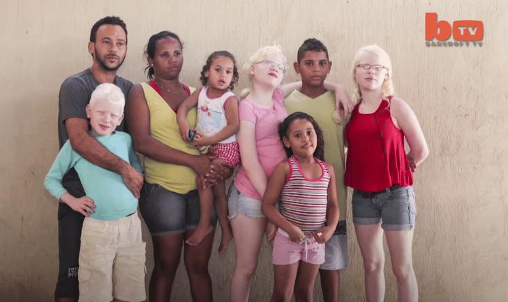 Семья альбиносов, Бразилия, Пернамбуко