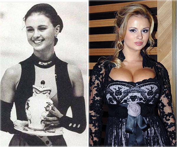 Фото №1 - Как грудь Семенович резко выросла до 5-го размера: эксперт