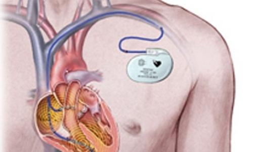 Фото №1 - Петербургские больницы больше не смогут брать деньги с пациентов за кардиостимуляторы
