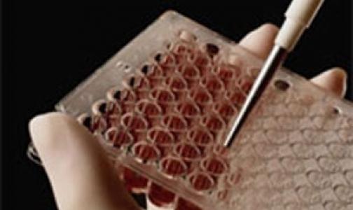 Фото №1 - Австралийские ученые нашли причину лейкозов