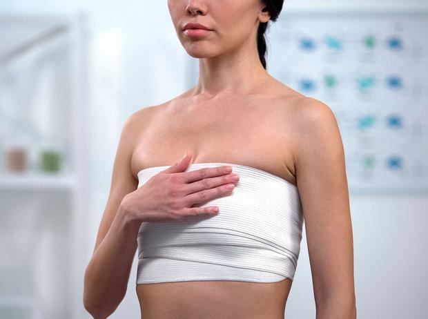 Фото №3 - Даже не думай: мифы о маммопластике